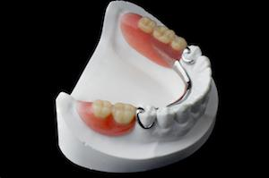 partial dentures st cloud fl