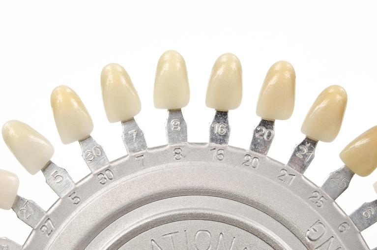 Different shades of dental crowns in St Cloud FL