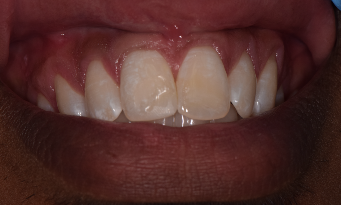 composite bonding | tooth colored filling st cloud fl