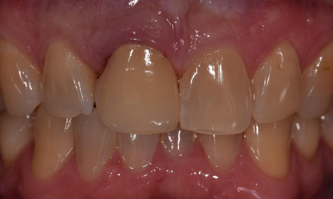 ceramic crowns st cloud fl