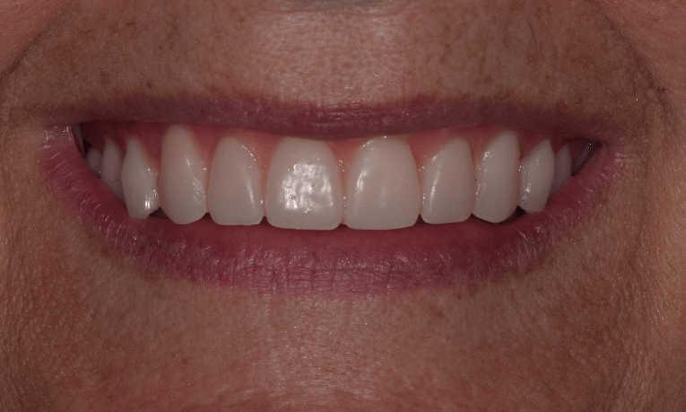 after complete dentures st cloud fl