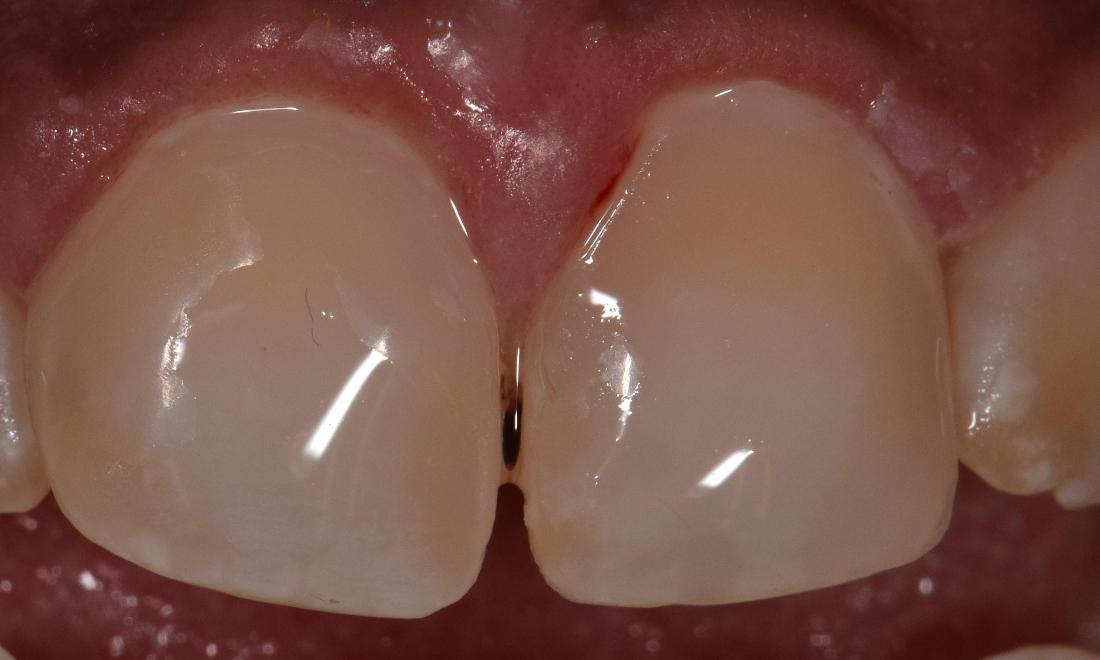 dental veneers st cloud fl