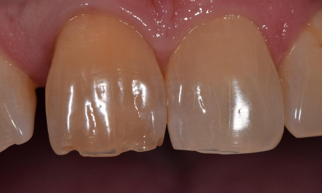 discolored and chipped teeth st cloud fl