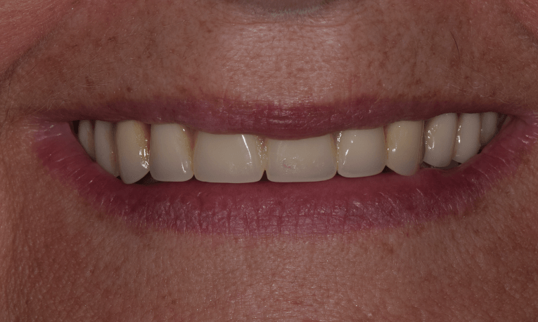 before complete dentures st. cloud fl