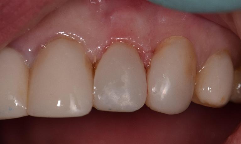Composite-Veneers-After-Image