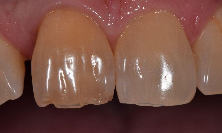 All-Ceramic-Crowns-Before-Image