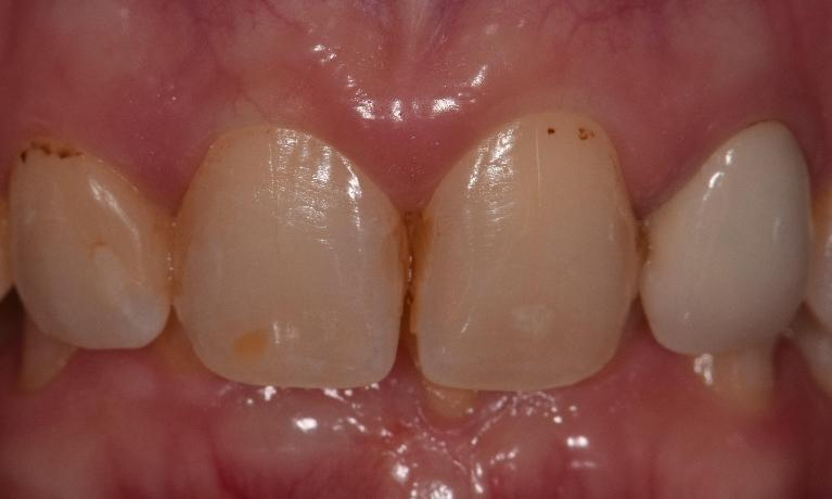 Composite-Resins-Before-Image