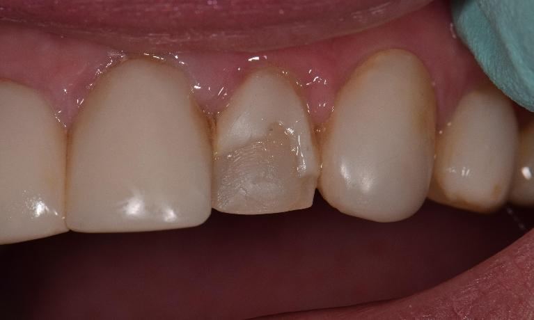 Composite-Veneers-Before-Image